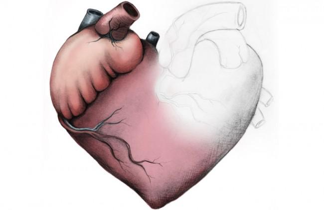 Atomically Incorrect Heart