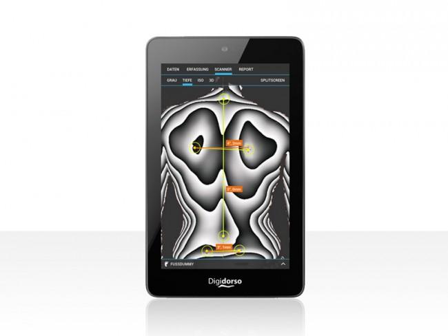 Orthosense   3D Infrarot Rückenscanner System für den Kunden Schein Orthopädietechnik